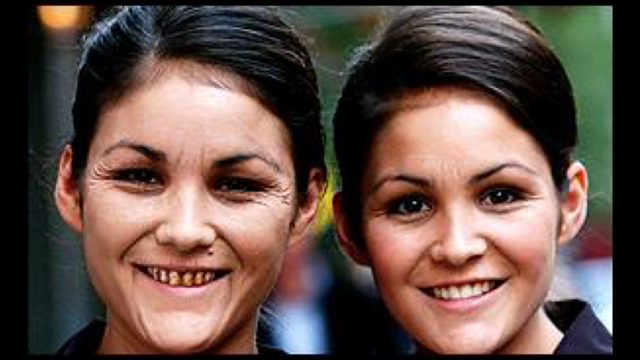双子、見た目比較